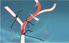 线栓法MCAO造模实验解决方案  徕越生物