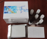 Cr试剂盒,人骨胶原交联ELISA试剂盒厂家