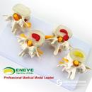 ENOVO颐诺医学腰椎正常病变组合模型 椎间盘骨疼痛科教学骨骼模型