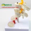 ENOVO颐诺人体腰椎模型 椎间盘突出模型骨骼脊柱脊椎骨科疼痛模型