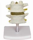 正常腰椎组合(2节)