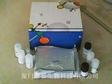 人醛缩酶(ALD)ELISA试剂盒