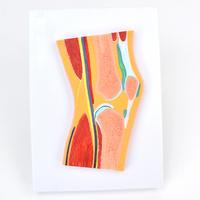 ENOVO颐诺医学解剖 膝关节骨骼肌肉模型 膝关节剖面滑车关节构造MRI关节肌肉骨骼解剖骨科教学模型