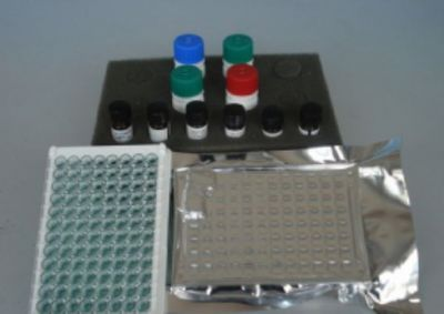 小鼠丙氨酸氨基转移酶(ALT)ELISA试剂盒
