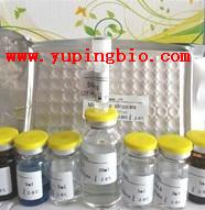 人钩端螺旋体抗体IgM(Lep-IgM)ELISA试剂盒
