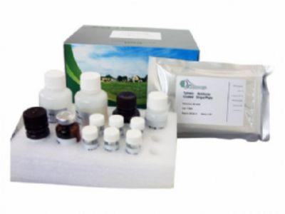 人抗巨细胞病毒抗体IgM(anti-CMV IgM)ELISA试剂盒