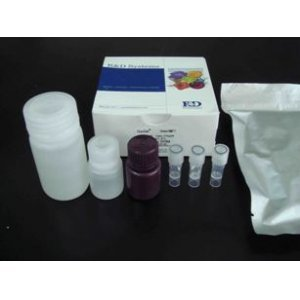 人胆固醇酯转移蛋白(CETP)ELISA试剂盒