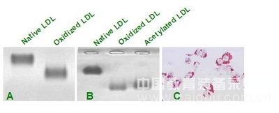 氧化型低密度脂蛋白(Human Ox-LDL, OxLDL)