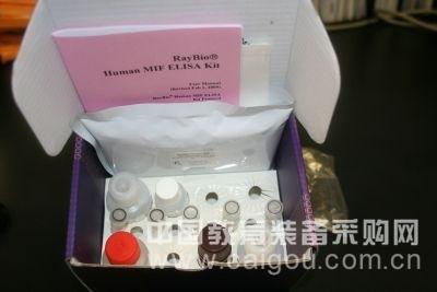 人糖缺失性转铁蛋白(CDT)ELISA试剂盒