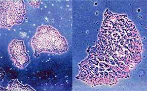 中科院细胞库供应 人Ad5DNA转化的胚肾 HEK-293