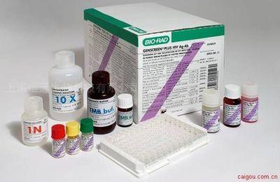 大鼠铁蛋白ELISA试剂盒