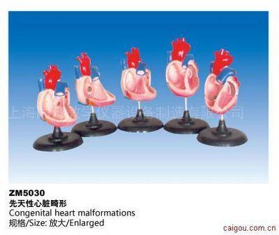 先天性心脏畸形