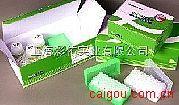 肺炎衣原体抗体(IgG\IgM)金标测试盒