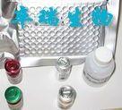 人甲种胎儿球蛋白/甲胎蛋白(AFP)Elisa试剂盒