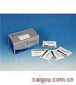 人HLAMP-2,溶酶体相关膜蛋白2Elisa试剂盒