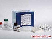 人IgG,免疫球蛋白GElisa试剂盒