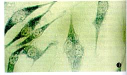 中科院细胞库供应 人黑色素瘤细胞株 HSC1