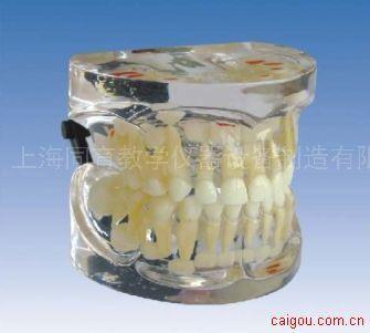 3岁乳恒牙交替模型